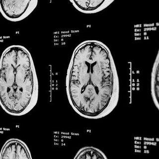 technology MRI scan